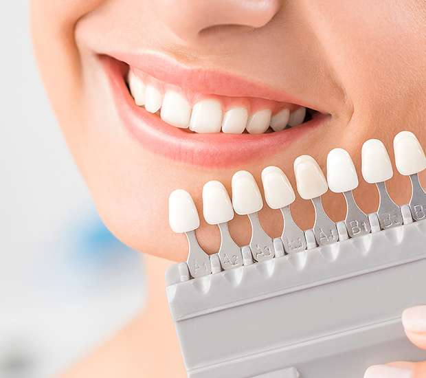 Huntsville Dental Veneers and Dental Laminates